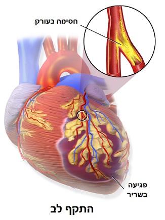 התקף לב - כאב בחזה